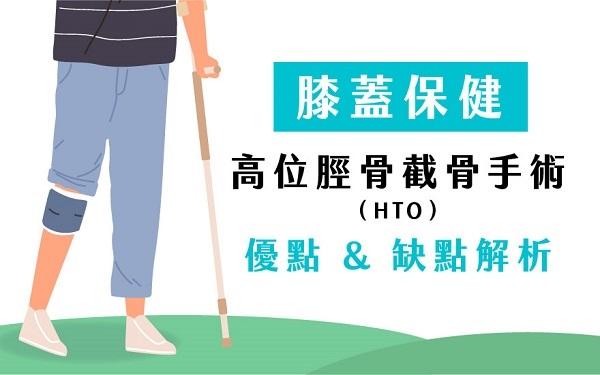 膝蓋保健高位脛骨截骨手術(HTO)優點缺點解析