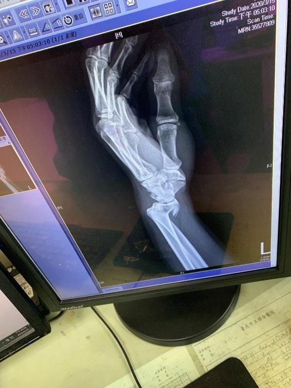 骨折X光圖