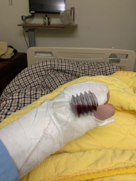 骨折手術治療後圖