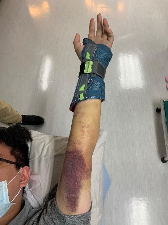 骨折手術治療後遺症